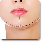 Facial Implant Beverly Hills