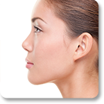 Rhinoplasty Beverly Hills